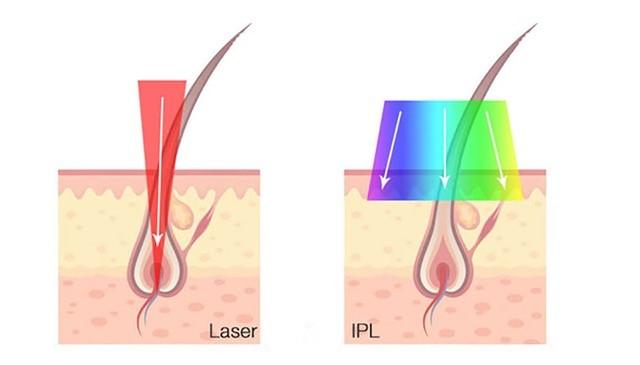 Лазерна или фотоепилация – кое да изберем?